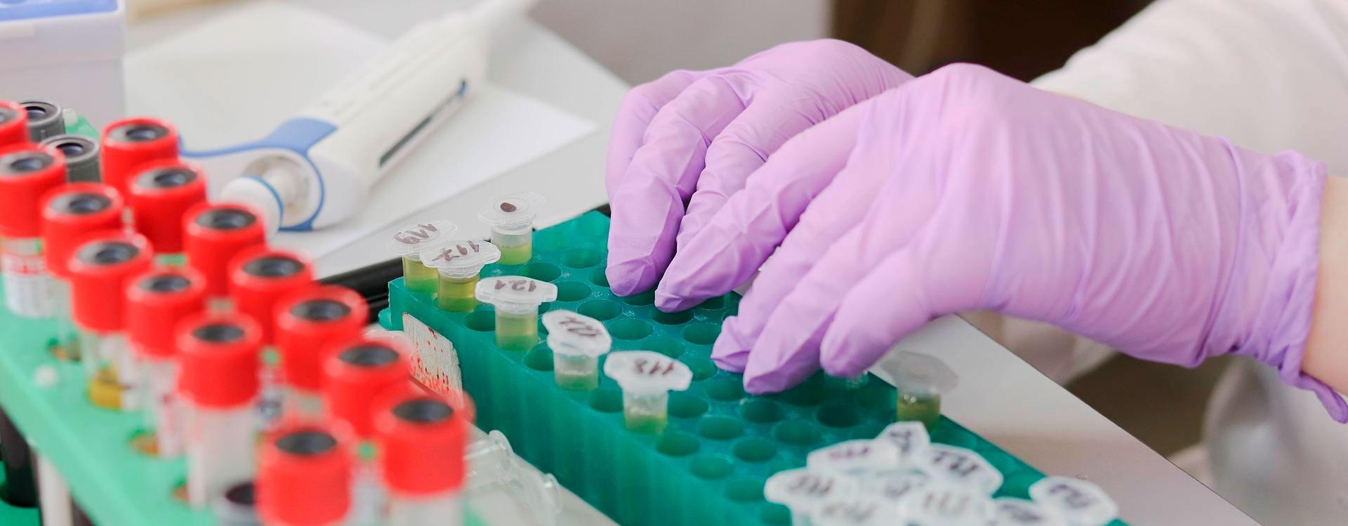 «Реаниматоры» Земли: особенности функционирования и экологический контроль современных очистных сооружений